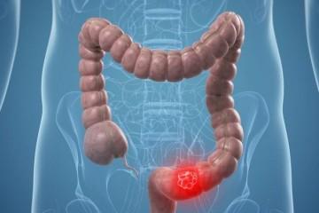 克罗恩病和溃疡性结肠炎简单忽视的4个问题