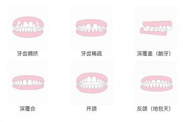 是时候解除你对牙齿隐形正畸的那些误会了